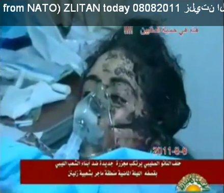 Opfer von NATO-Bombenterror in Libyen, 08.08.2011